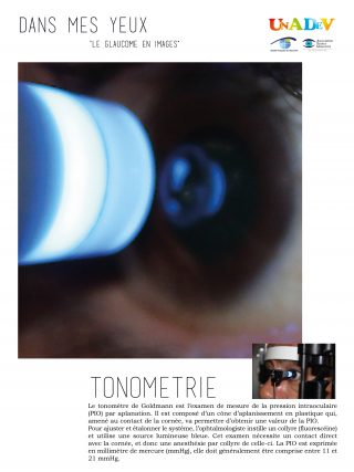 01-tonometrie