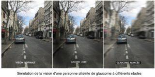 Image Illustration de la vision d'une personne atteinte de glaucome à différents stades